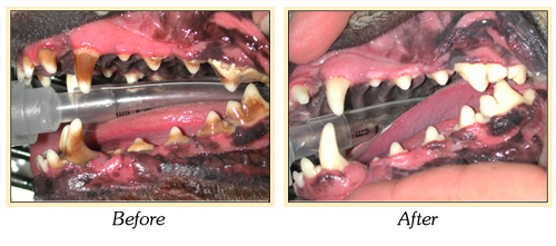 Before and after images showing teeth with tartar